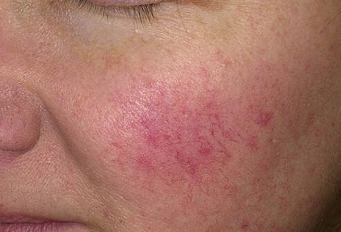 penyakit kulit Rosacea