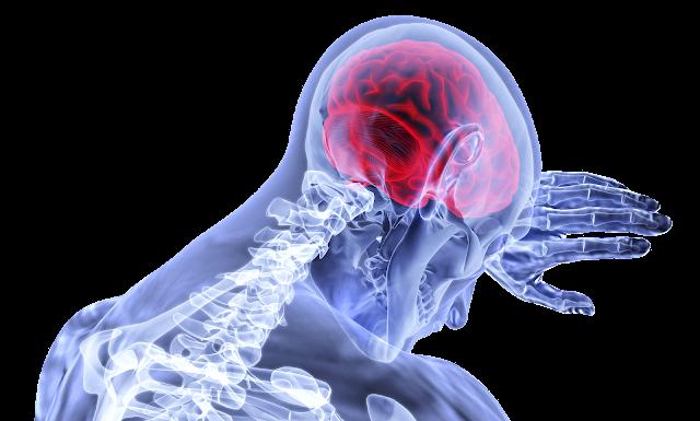beyin kanamasi nedir
