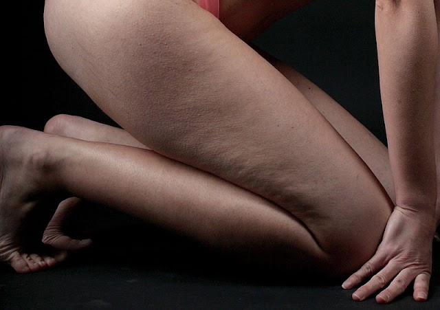 Exercises And Opportunities to Fight Cellulite Effectively