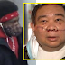Elderly Filipino receives hundreds of stitches after attacked in New York subway