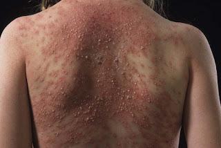 A milder form of Tylenol rash.photo