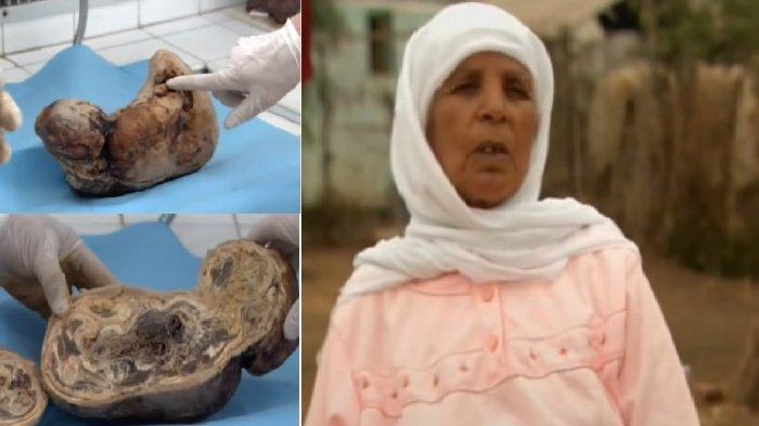 """Fenomena Langka: (Video) Seorang Ibu Kandung Bayinya Selama 46 Tahun, Dan Melahirkan """"Bayi Batu"""""""
