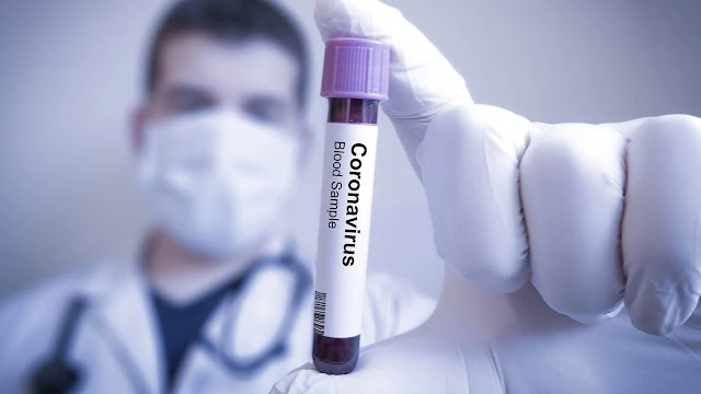 COVID-19: First results published on coronavirus drug treatment