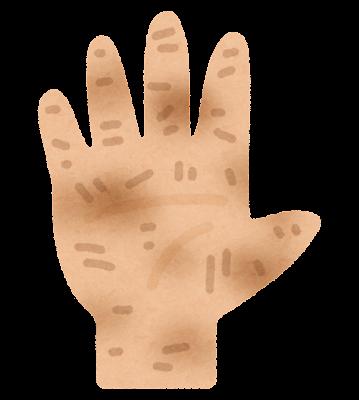 汚れた手のイラスト