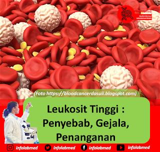 leukosit tinggi,leukosit tinggi pada anak balita,leukosit tinggi hematokrit rendah,leukosit tinggi pada ibu hamil,leukosit tinggi leukimia,leukosit tinggi hiv,leukosit tinggi makan apa,leukosit tinggi pasca operasi,leukosit tinggi pada anjing,leukosit tinggi trombosit normal,leukosit tinggi di urine,leukosit tinggi anak,leukosit tinggi perlu antibiotik,leukosit tinggi dan trombosit tinggi,leukosit tinggi tanda apa,leukosit tinggi hamil,leukosit tinggi sekali,leukosit tinggi pada lansia,leukosit tinggi gejala apa,leukosit tinggi ada infeksi,leukosit tinggi pada kucing,leukosit tinggi artinya,leukosit tinggi apakah harus opname,leukosit tinggi alergi,leukosit tinggi apa obatnya,leukosit tinggi akibatnya,leukosit tinggi apakah leukemia,leukosit tinggi apakah hiv,leukosit tinggi akibat apa,leukosit tinggi apakah menular,leukosit tinggi apa berbahaya,leukosit tinggi apa itu,leukosit tinggi pada anak 2 tahun,leukosit tinggi bayi,leukosit tinggi bayi baru lahir,leukosit tinggi berakibat,leukosit tinggi badan panas,leukosit tinggi bagi hamil,leukosit tinggi bolehkah minum susu,leukosit tinggi bisa menyebabkan,leukosit tinggi bahaya tidak,leukosit tinggi berapa,leukosit tinggi bisa sembuh,leukosit tinggi bisa disembuhkan,leukosit tinggi berbahaya tidak,leukosit tinggi bahaya,leukosit tinggi balita,leukosit tinggi batuk,leukosit tinggi bahaya kah,leukosit tinggi bagaimana,leukosit tinggi pada bayi lahir,leukosit tinggi pada bayi,leukosit tinggi pada bayi baru lahir,leukosit tinggi cara mengatasinya,leukosit tinggi cara menurunkan,leukosit tinggi ciri,campak leukosit tinggi,leukosit tinggi setelah caesar,leukosit dan crp tinggi,leukosit normal crp tinggi,penyebab leukosit tinggi dan cara mengatasinya,ciri leukosit tinggi pada bayi,penyebab leukosit tinggi dan cara mengobatinya,ciri leukosit tinggi pada ibu hamil,leukosit tinggi disebabkan oleh,leukosit tinggi dan hematokrit rendah,leukosit tinggi dan trombosit rendah,leukosit tinggi dalam sperma,leukosit tinggi dan hiv,leukosi