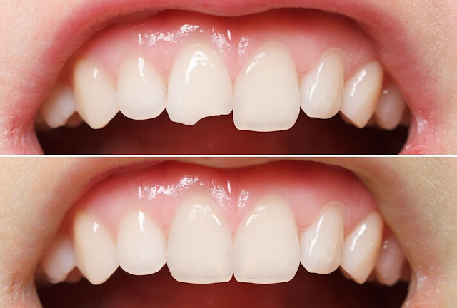 dental health, dental health tips, health, dental bonding, teeth, teeth whitening, invisible aligners, cosmetic dentistry