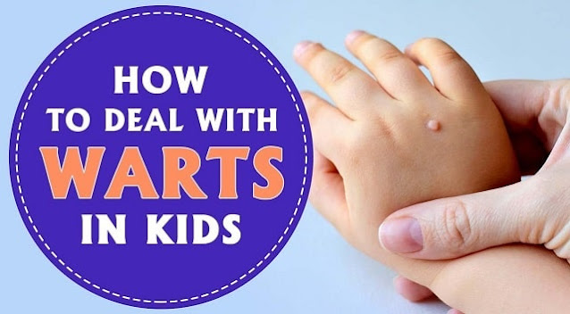 how to treat common warts in children wart removal kids