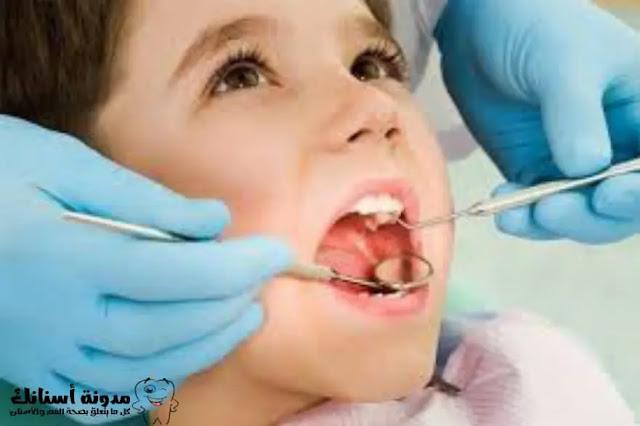 أمراض الفم والأسنان - تسوس الأسنان الأسباب والأعراض- والعلاج.