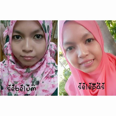 tips kecantikan , hilangkan eyebag , hilangkan dark circle , tips dark circle, tips eyebag ,