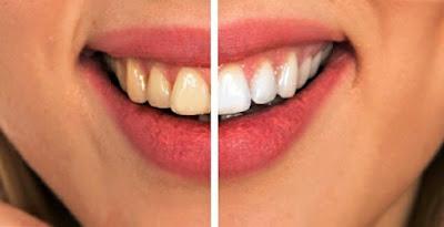 اتّبع روتين أساسي للعناية بالأسنان