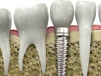 4 Fakta Implan Gigi yang Mesti Diketahui