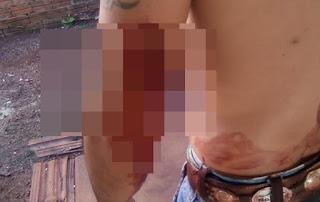 Roncador: Homem é ferido por golpes de faca próximo à rodoviária