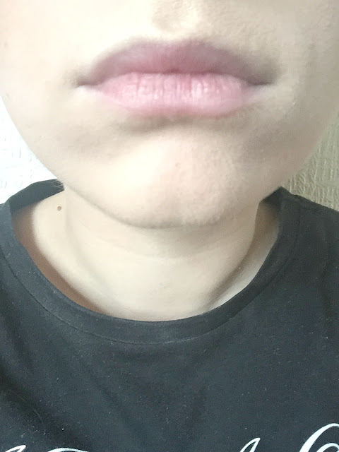 lips before plumping