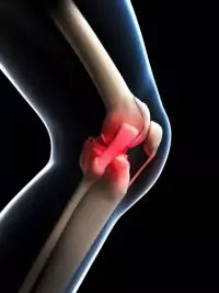 How to avoid knee pain in winter.