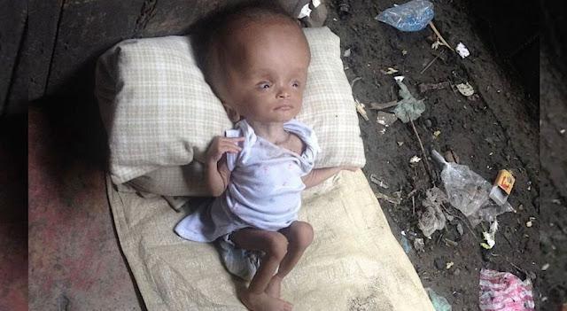 Младенцем ее оставили умирать в куче мусора. Но нашлась женщина, которая спасла ее