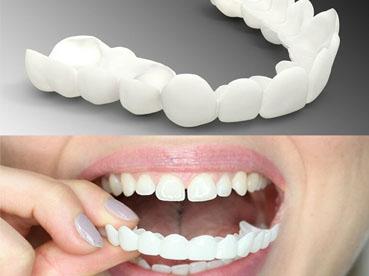 عدسات تبييض الاسنان تجربتي