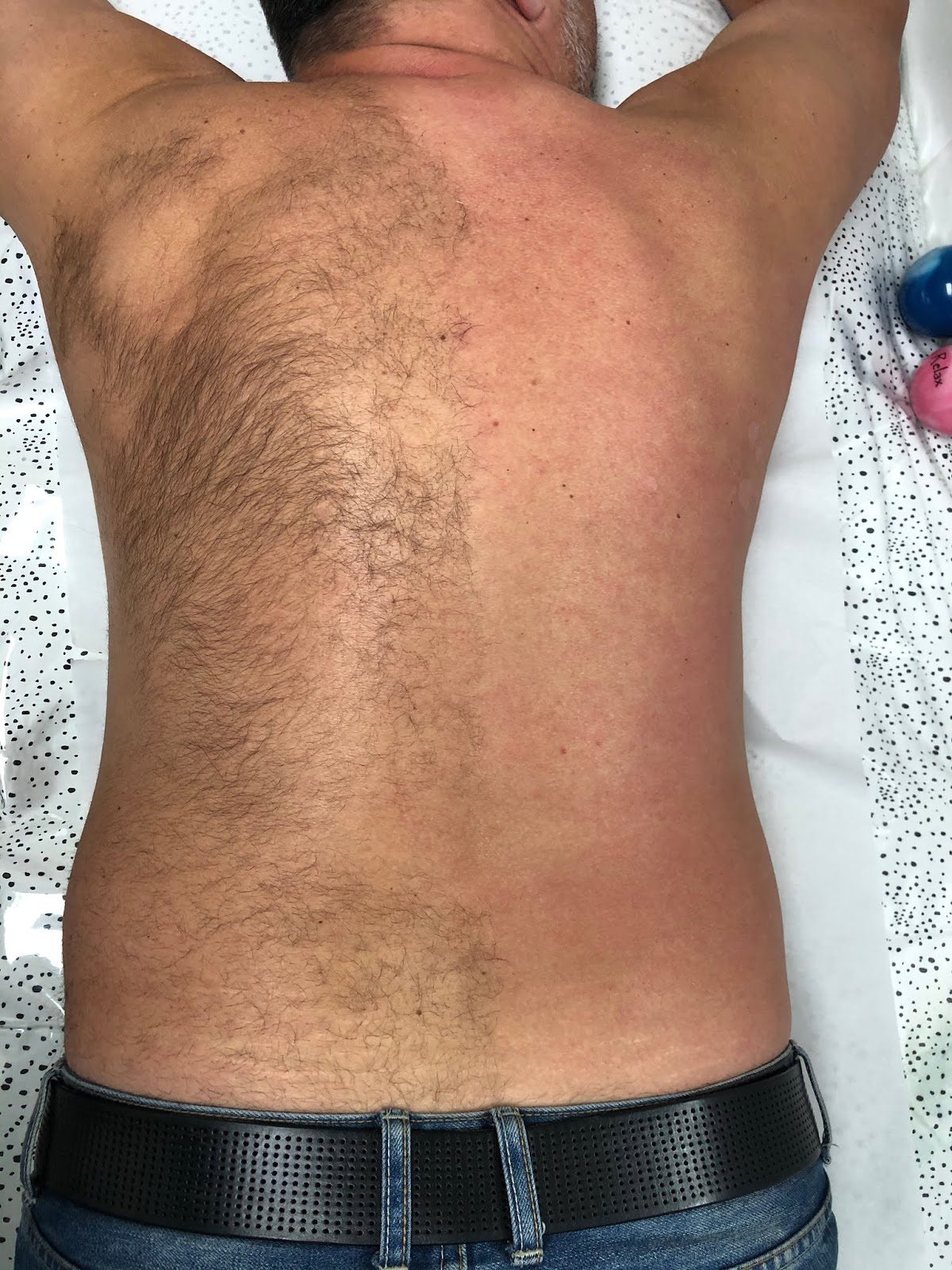Back Waxing for men: is it worth it?