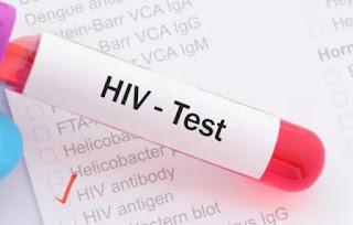 Gejala HIV Dan Ciri-Cirinya