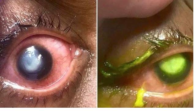 Gara-gara Tidur Pakai Soft Lens, Kornea Mata Wanita Ini Membusuk Digerogoti Bakteri