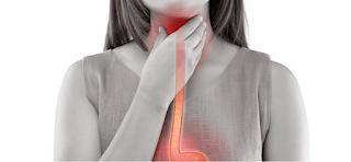 Reflux laryngo-pharyngé