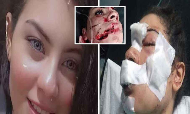 Esraa Emad 18-year-old Wife and Mom stabbed by her own husband to Death in Egypt
