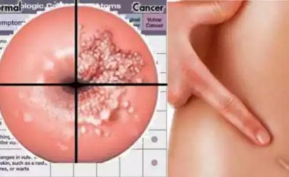 Obat Kanker Usus dan Serviks yang Tak Sengaja ditemukan Ilmuwan