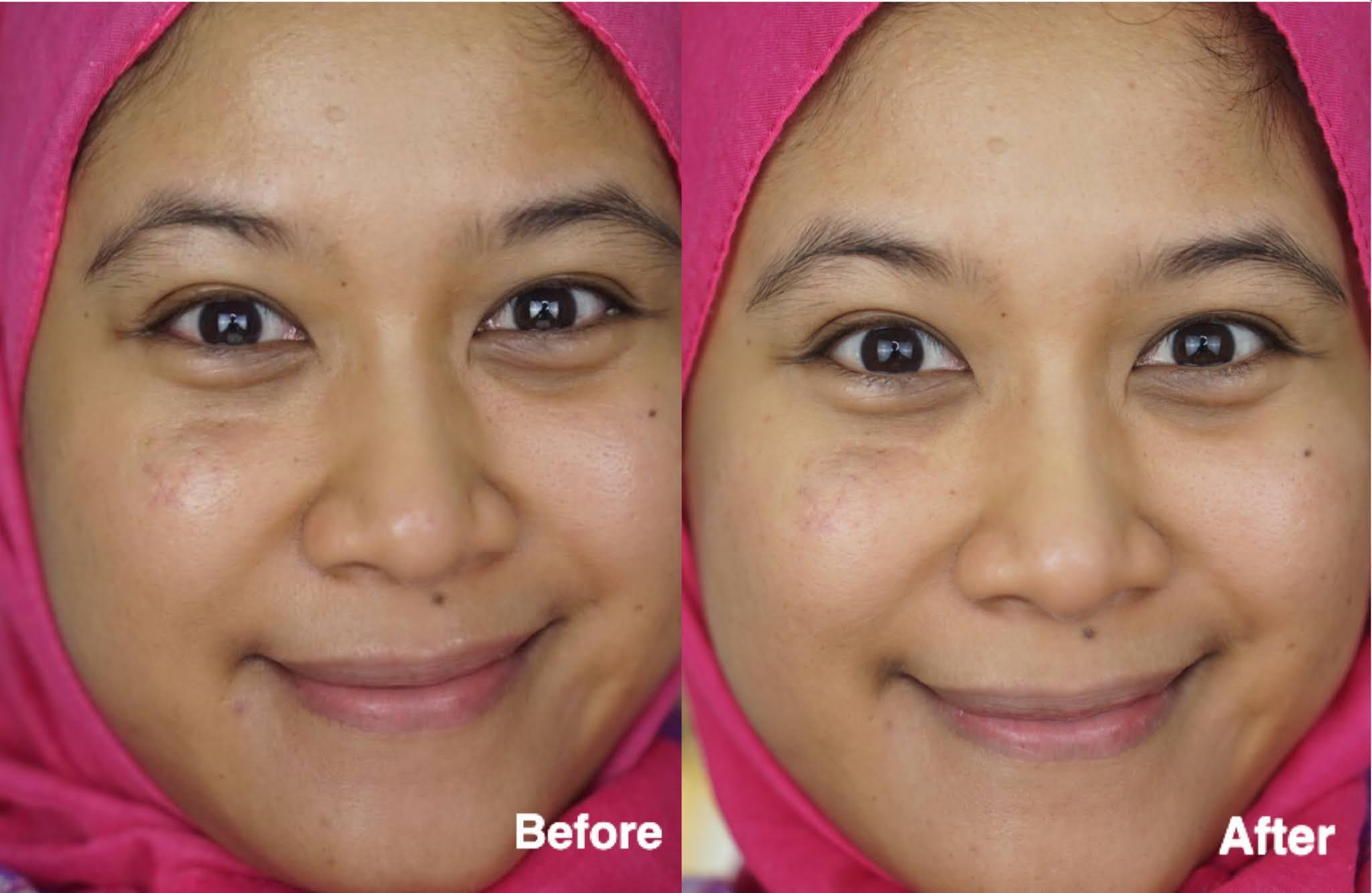 Avoskin Your Skin Bae Niacinamide 7% + Alpha Arbutin 1% + Kale dan Marine Collagen 10% + Ginseng Root