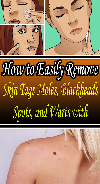 #How to Easily Remove #Skin Tags, Moles, #Blackheads, Spots, and Warts with#Health