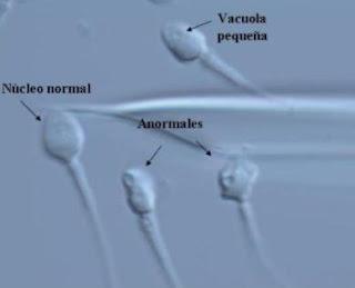 高倍率顕微鏡で見た精子
