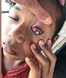 Gadis dari Keluarga Kurang Mampu Penderita Sakit Mata Ingin Sembuh