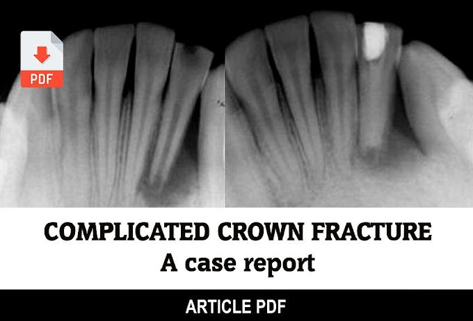 PDF: Complicated crown fracture: a case report