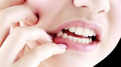 Obat radang gusi , Ciri ciri radang gusi, Radang gusi kronis, mengobati radang gusi secara alami