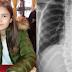 Djevojčica od 13 godina treba 50.000KM za liječenje