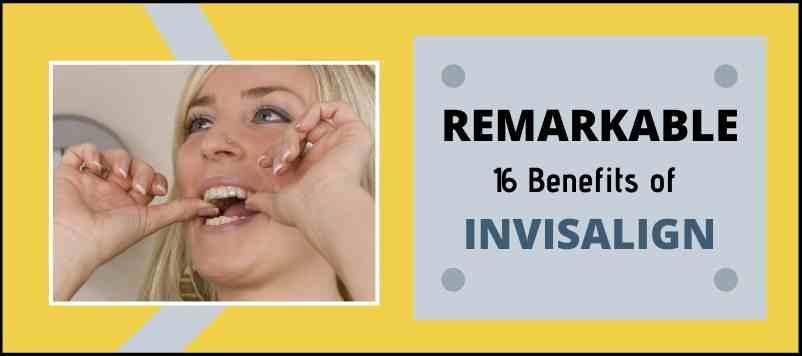 Benefits of invisalign braces