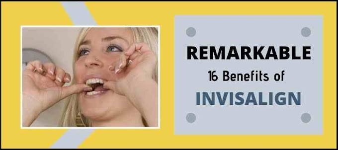 16 Remarkable Benefits of Invisalign Braces | Viral Anchor