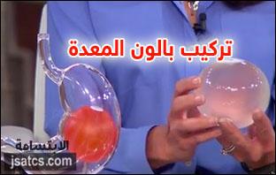عملية بالون المعدة في مستشفى النور