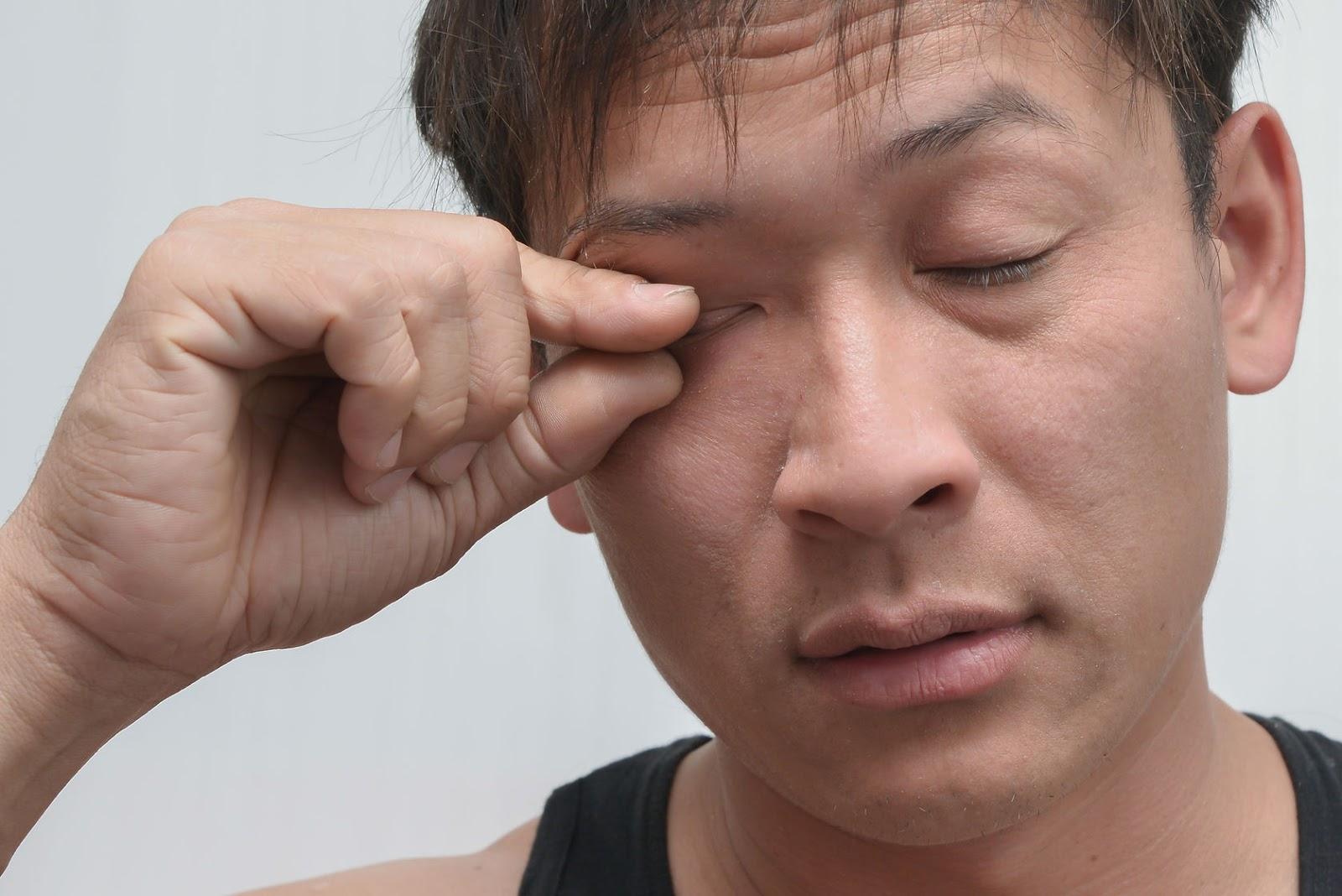高雄眼袋手術