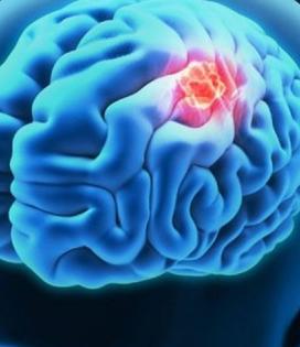 Ternyata 5 Makanan Berikut Ini Penyebab Kanker Otak yang Jarang Diketahui