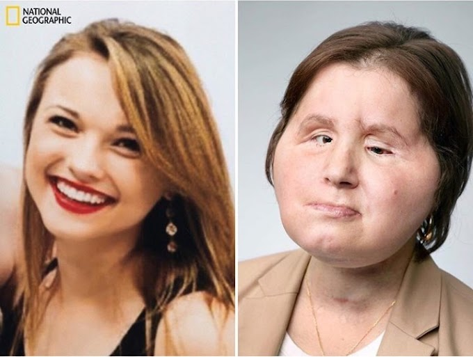 Photos: Woman becomes the youngest person in the US to get a full face transplant after surviving suicide attempt