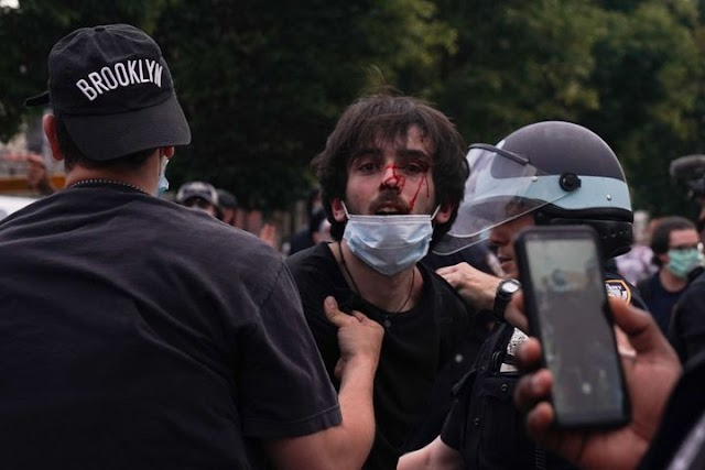As Protests Ramped Up Across USA, So Did Police Brutality