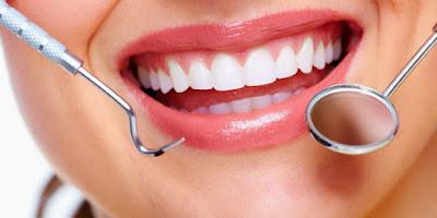 Tips Kecantikan untuk memutihkan Gigi dengan tidak Alami