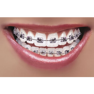 How To Whiten Teeth With Braces Fitness For Women