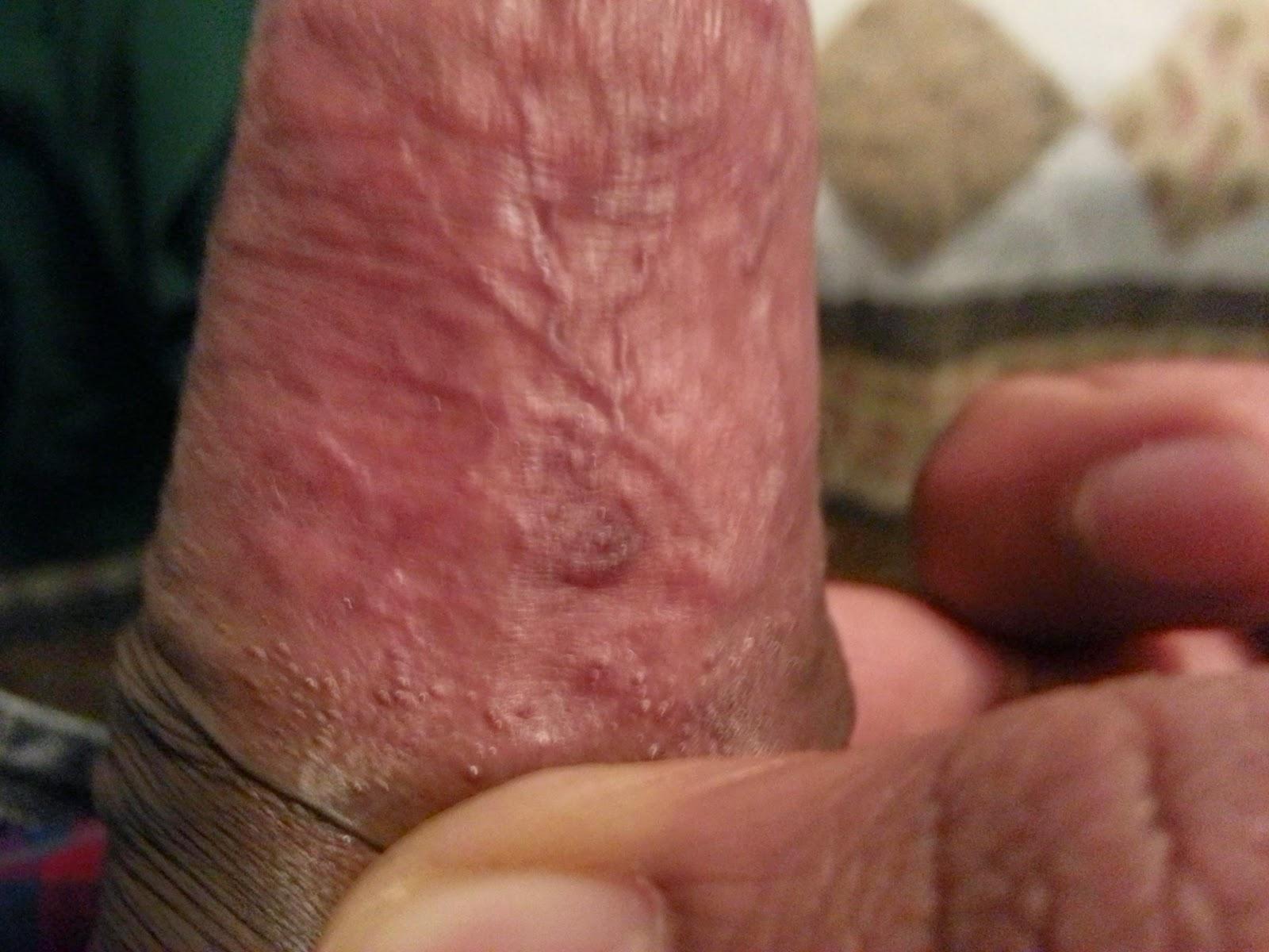 Hurts underside of penis