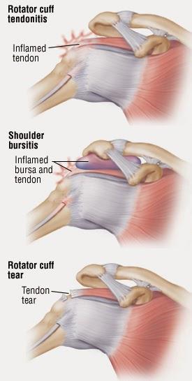 艾思物理治療所: 手抬不起來就是五十肩嗎? 認識旋轉肌傷害(rotator cuff injury)
