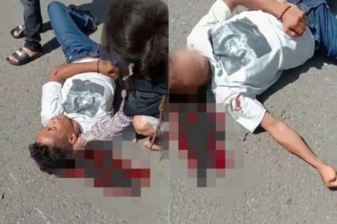 Bonceng Ibu, Pemuda di Bone Tiba-Tiba Terjatuh Dari Motor Hingga Kepala Pecah