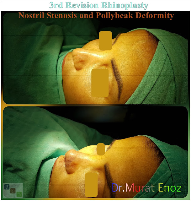 3rd Revision Rhinoplasty - Nostril Stenosis and Pollybeak Deformity - Complication Nose Surgery