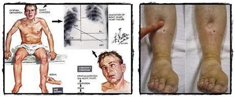 Cara Menyembuhkan Penyakit Beri-Beri Basah Dan Kering Menahun