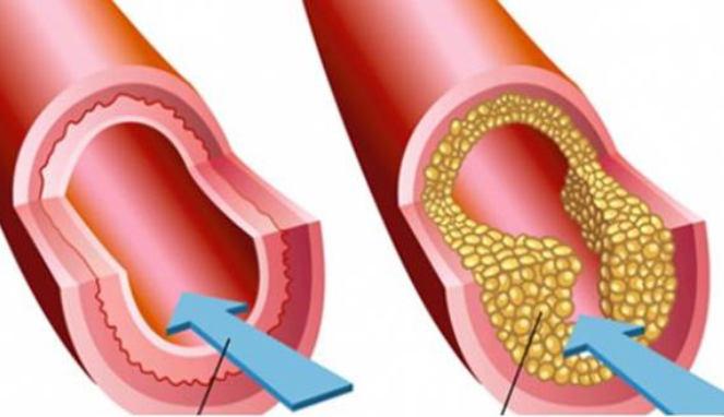 Kenali 4 Gejala Kolesterol Tinggi yang Tidak Terduga Ini