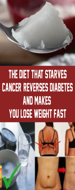 The Diet That Starves Cancer  Reverses Diabetes And Makes You Lose Weight Fast