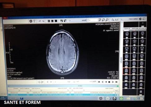 Cancer du cerveau guérison et survie avec un régime cétogène sans glucides.